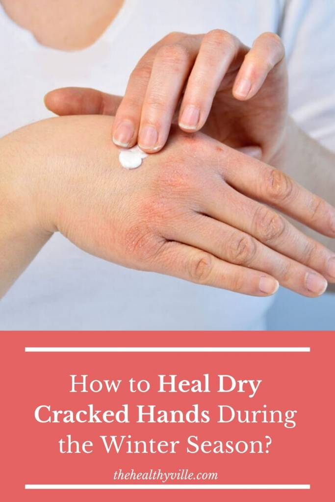 How to Heal Dry Cracked Hands During the Winter Season_