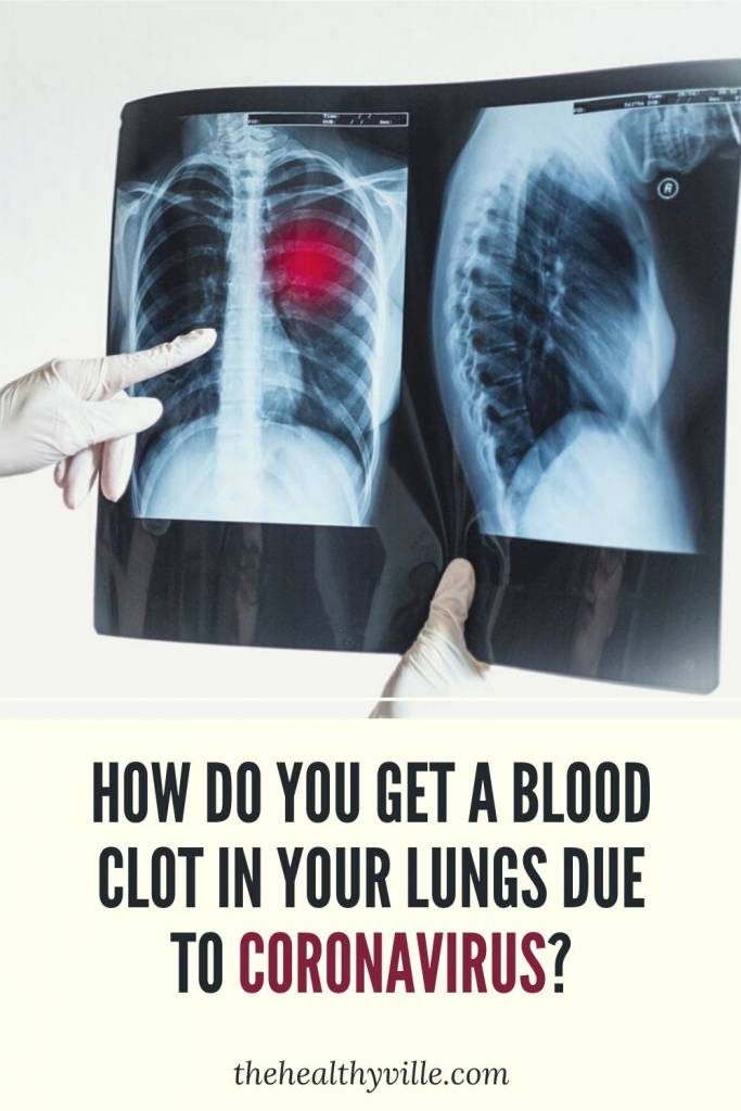 How Do You Get a Blood Clot in Your Lungs Due to Coronavirus_