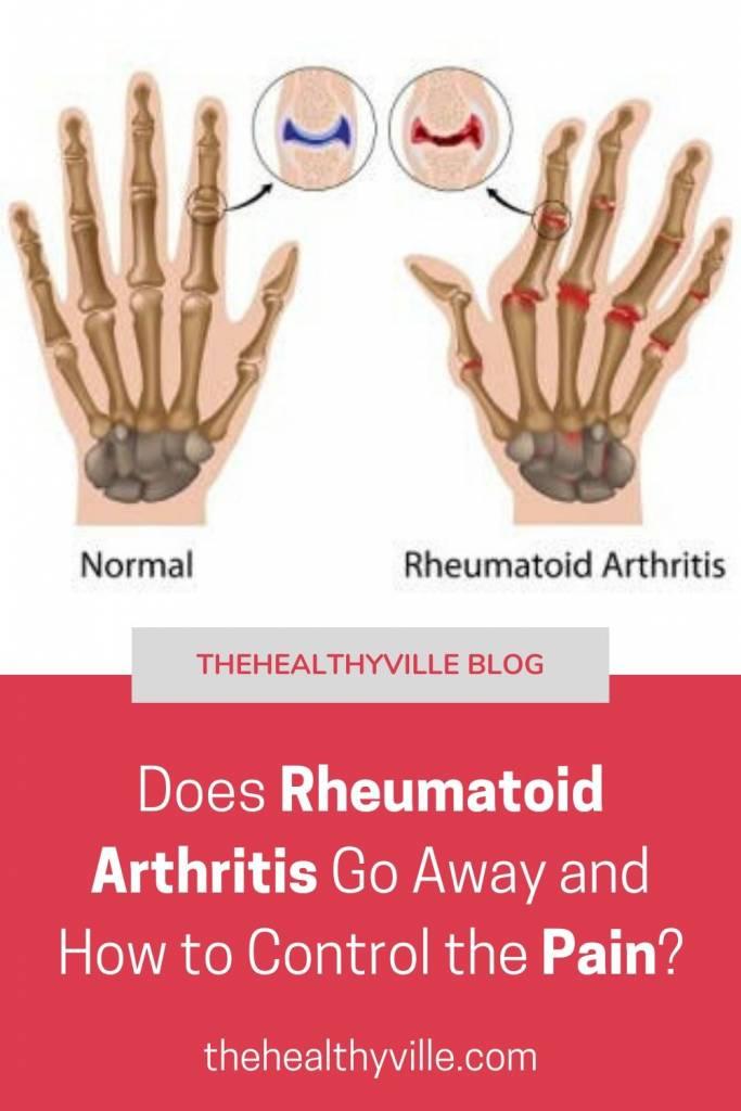Does Rheumatoid Arthritis Go Away and How to Control the Pain_