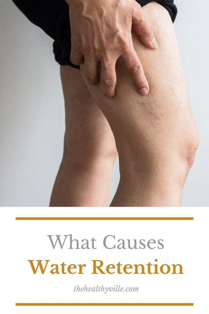 What Causes Water Retention and What to Do about It_