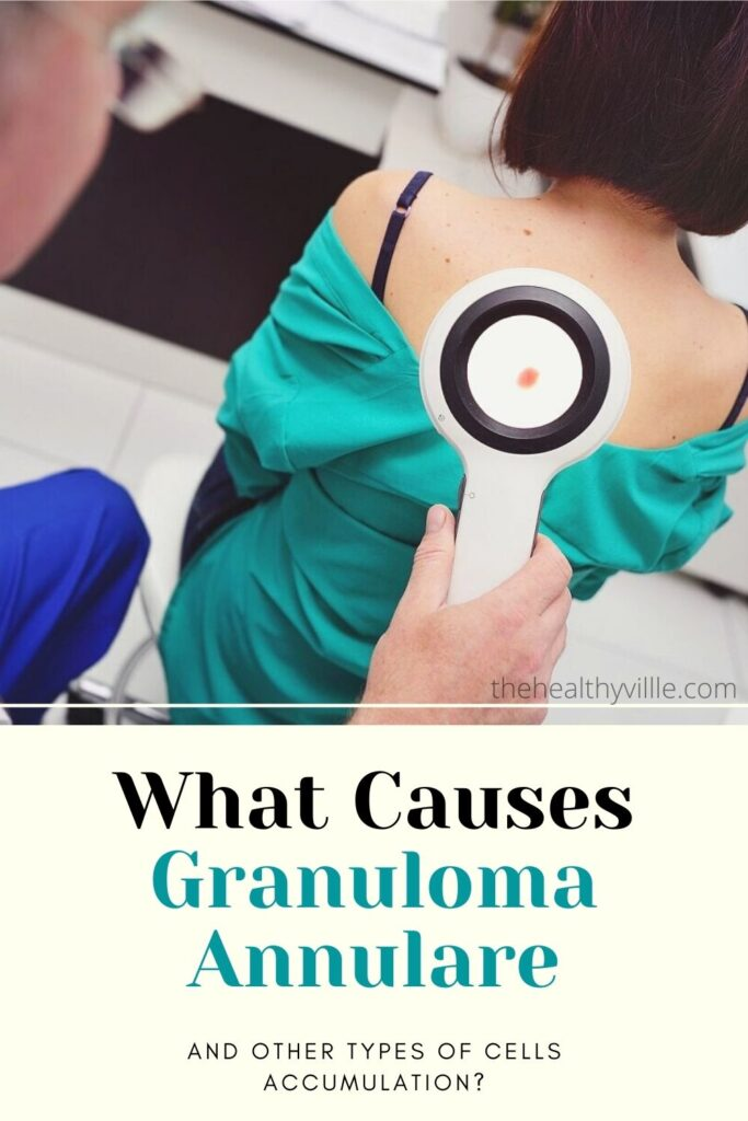 What Causes Granuloma Annulare and Other Types of Cells Accumulation_