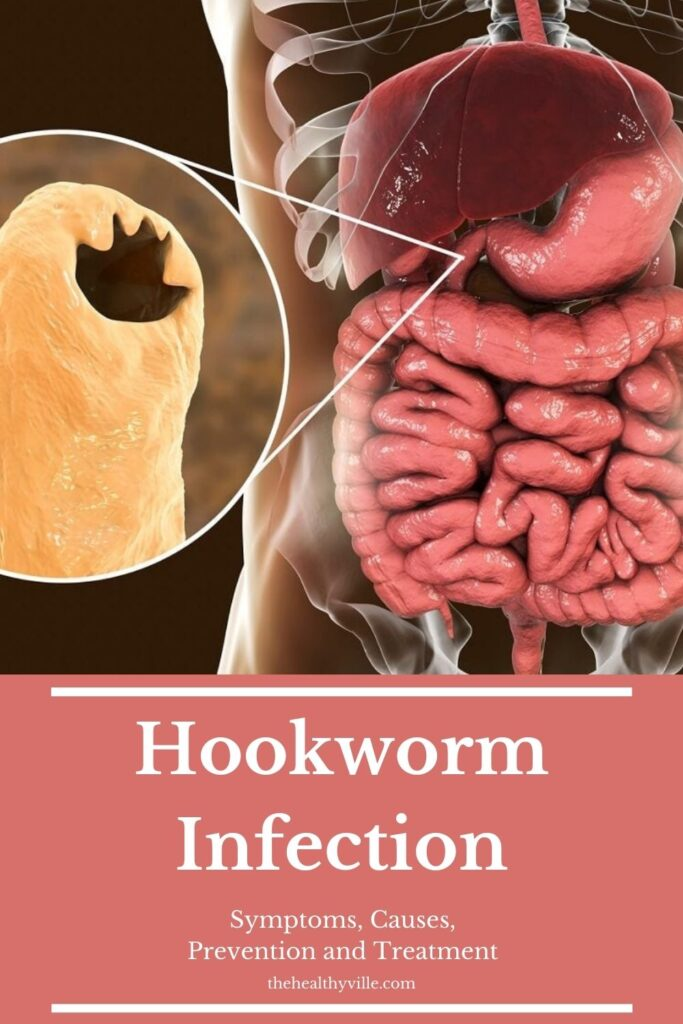 Hookworm Infection – Symptoms, Causes, Prevention and Treatment