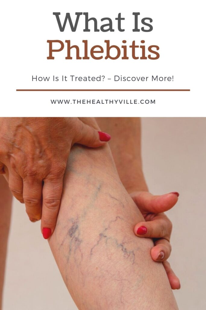 What Is Phlebitis and How Is It Treated_ – Discover More!
