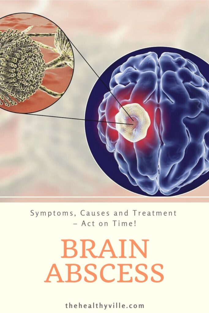 Brain Abscess Symptoms, Causes and Treatment – Act on Time!