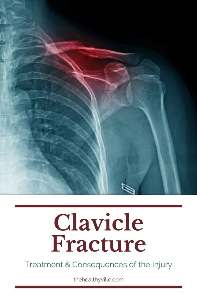 Clavicle Fracture Treatment & Consequences of the Injury