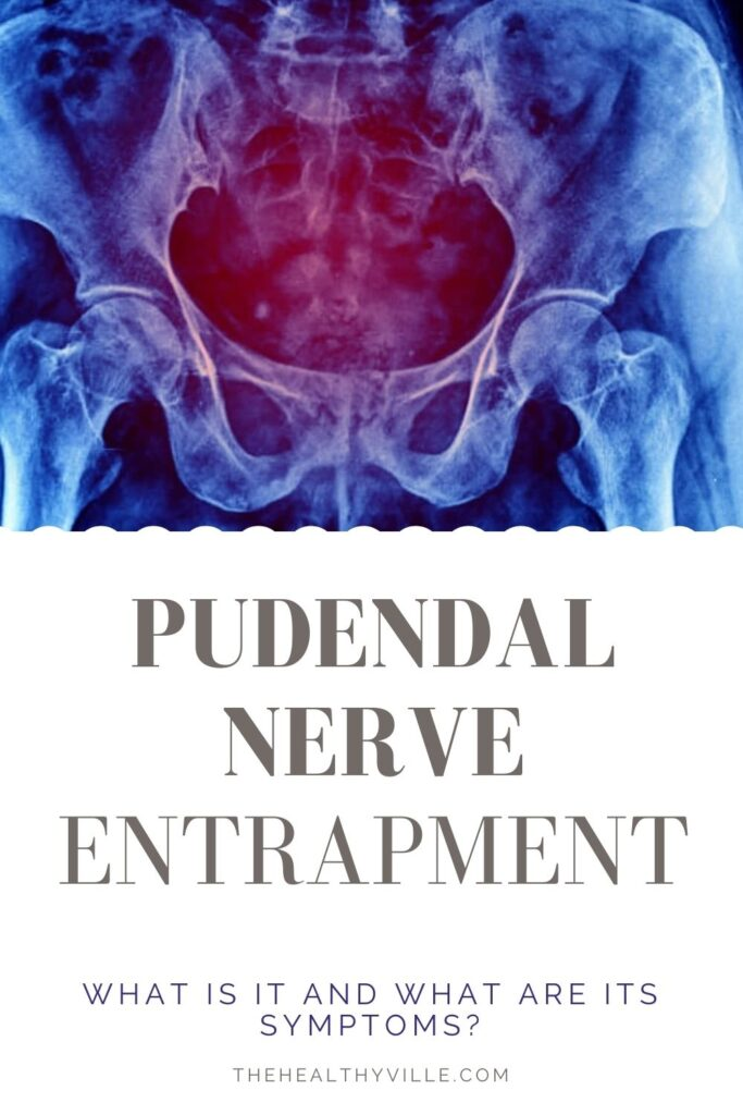 Pudendal Nerve Entrapment – What Is It and What Are Its Symptoms_
