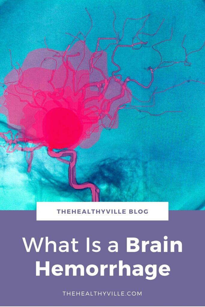 What Is a Brain Hemorrhage and Why Does It Occur_