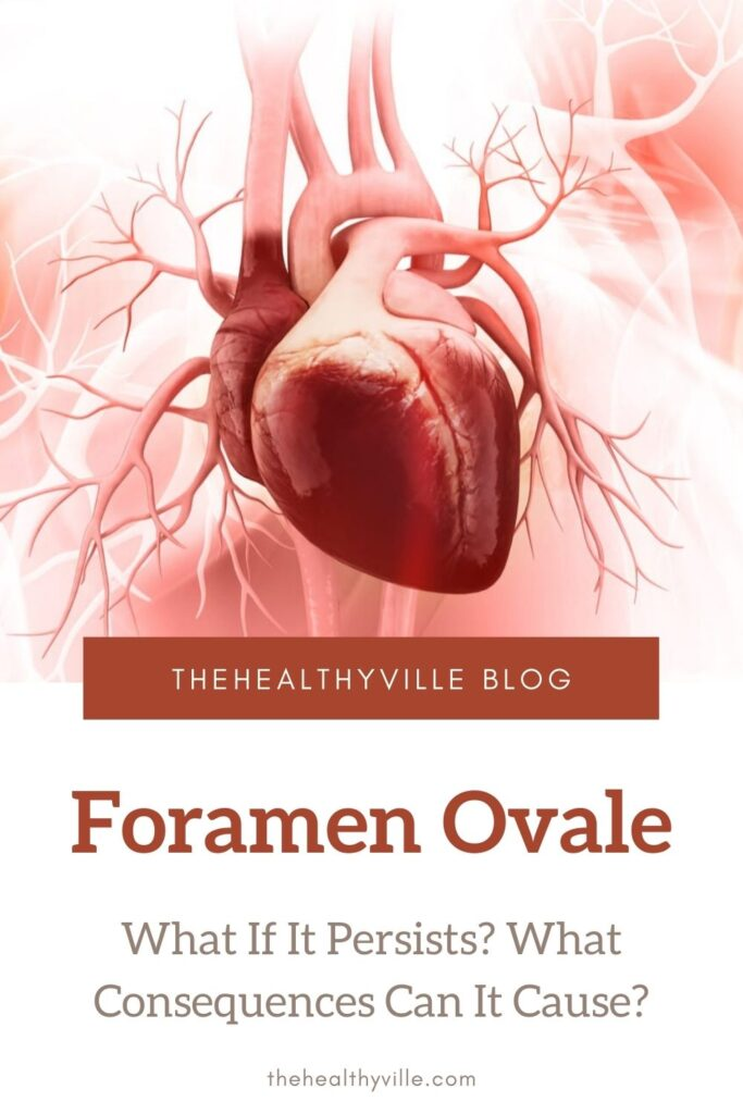Foramen Ovale – What If It Persists What Consequences Can It Cause