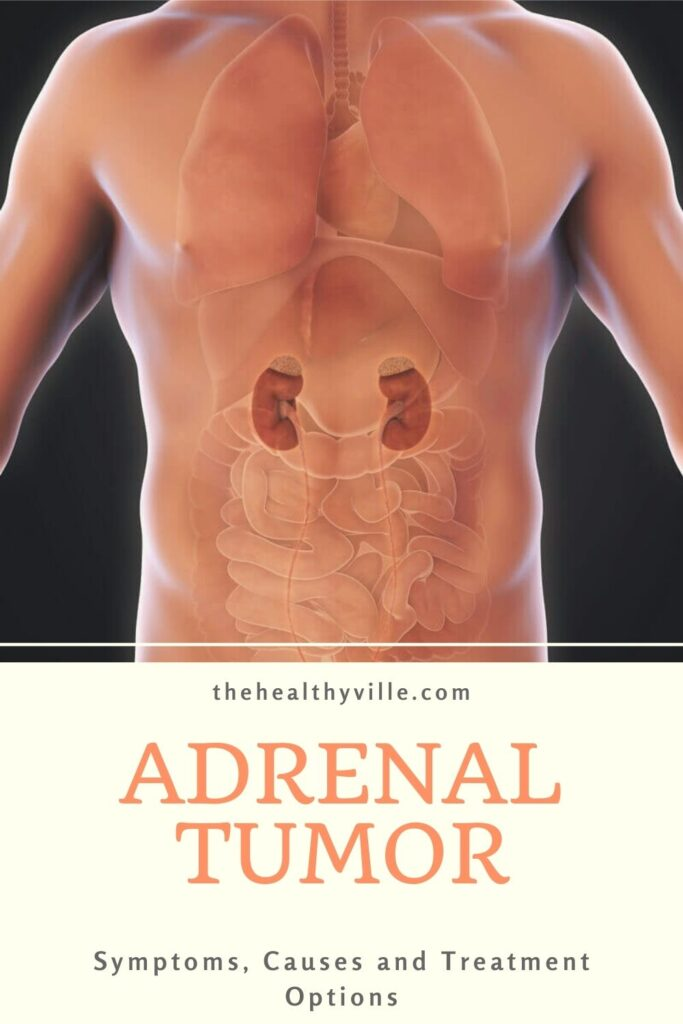 Symptoms of Adrenal Tumor, Causes and Treatment Options