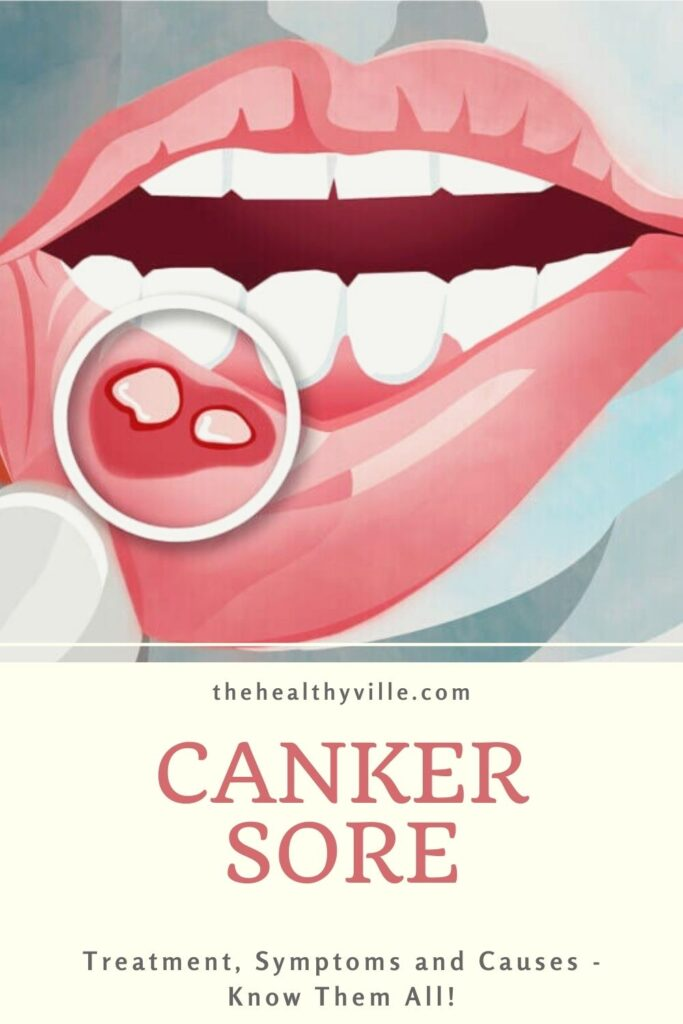 Canker Sore Treatment, Symptoms and Causes - Know Them All!
