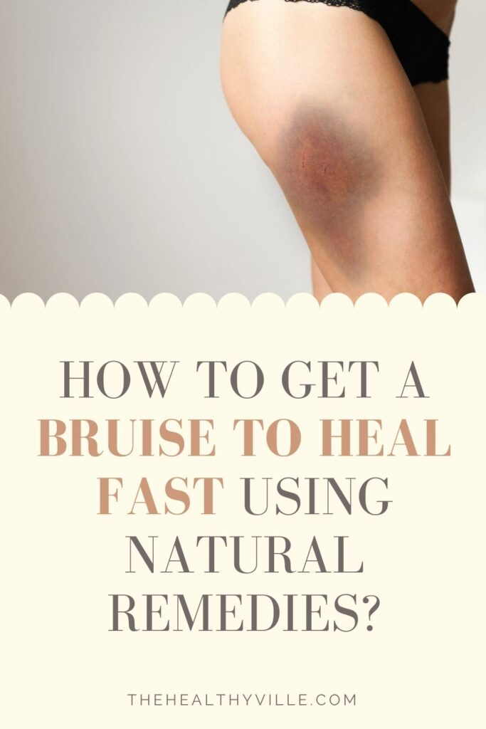 How to Get a Bruise to Heal Fast Using Natural Remedies