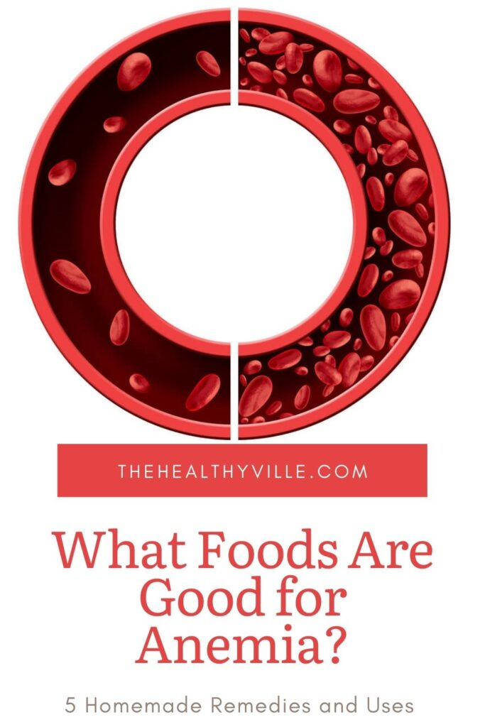 What Foods Are Good for Anemia – 5 Homemade Remedies and Uses